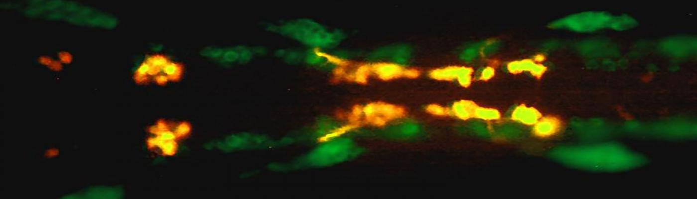 Zebrafish hindbrain labeled with anti-HuC antibody (green; neurons) and Tg(islet1:mRFP) labeling branchiomotor neurons